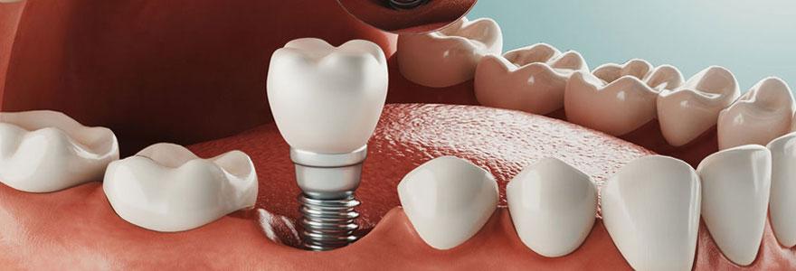 Pose d'implant dentaire à Genève